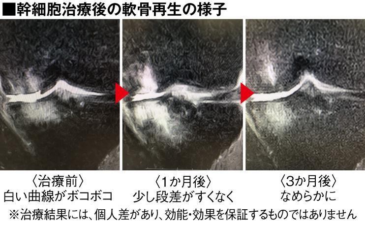 関節の再生医療 リソークリニック